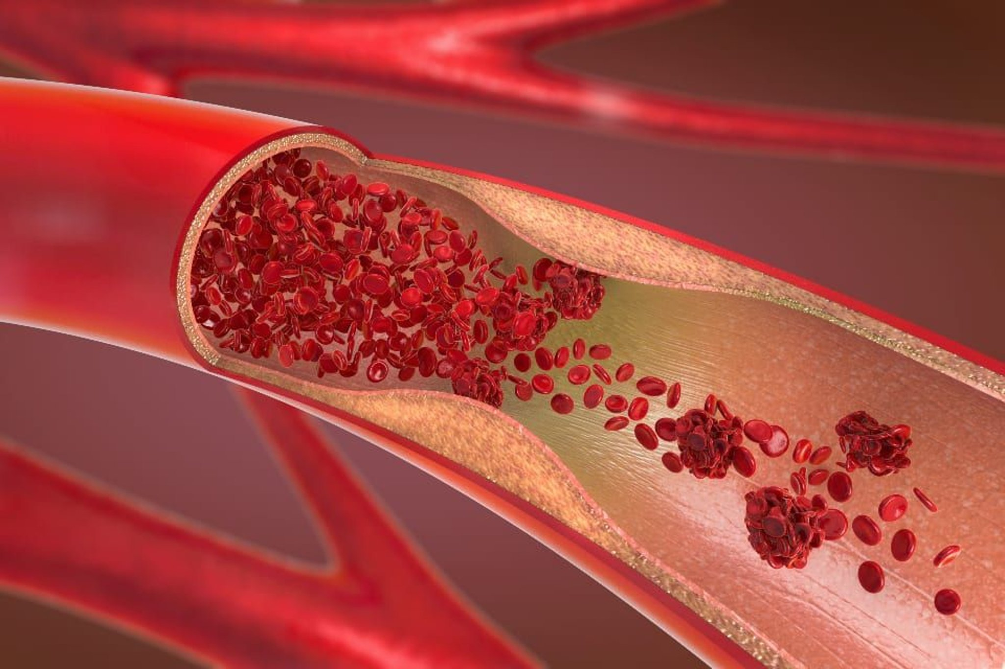Here's how to make your arteries younger according to medical experts