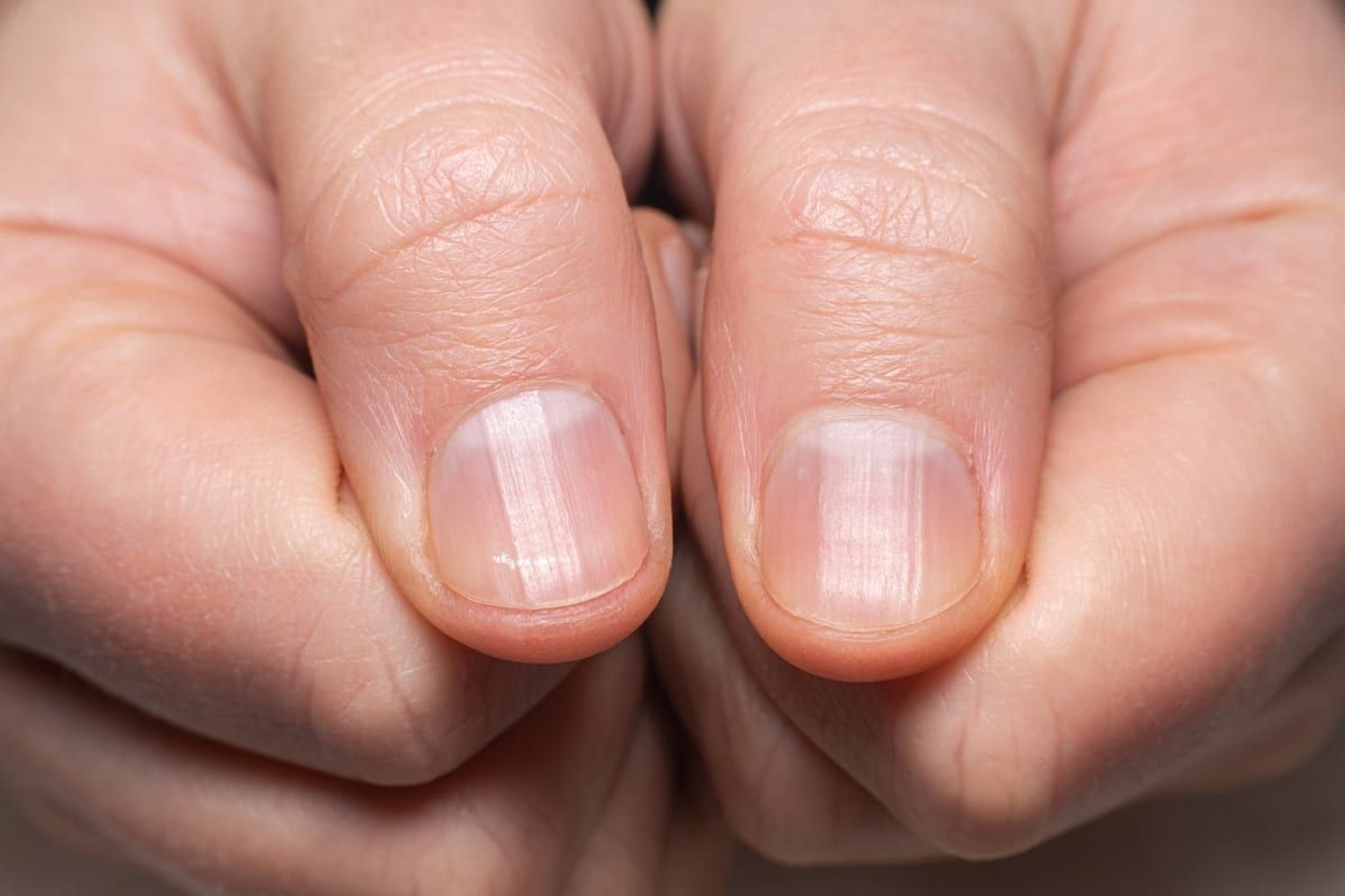 'Covid nails' could be a sign of previous infection - the key symptoms to look for