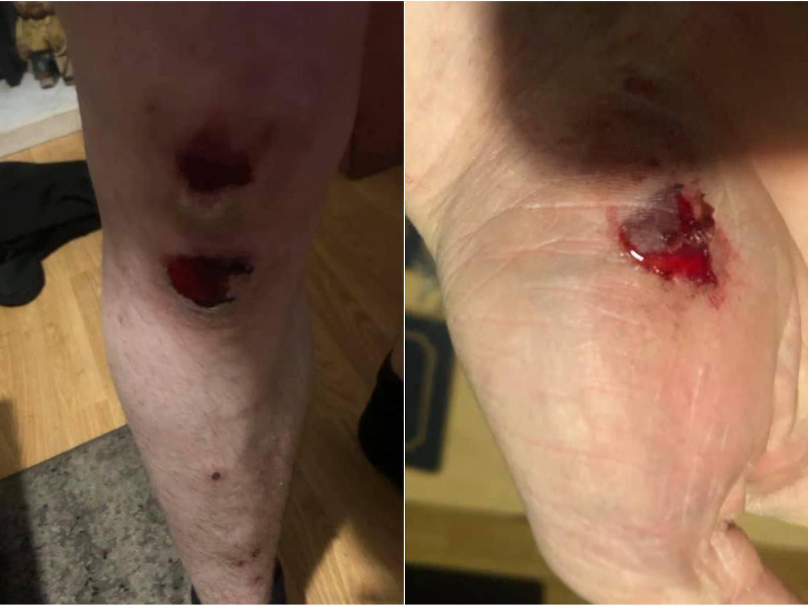 'I was scared for my life': Leeds cyclist left terrified after escape bid from alleged bike thief
