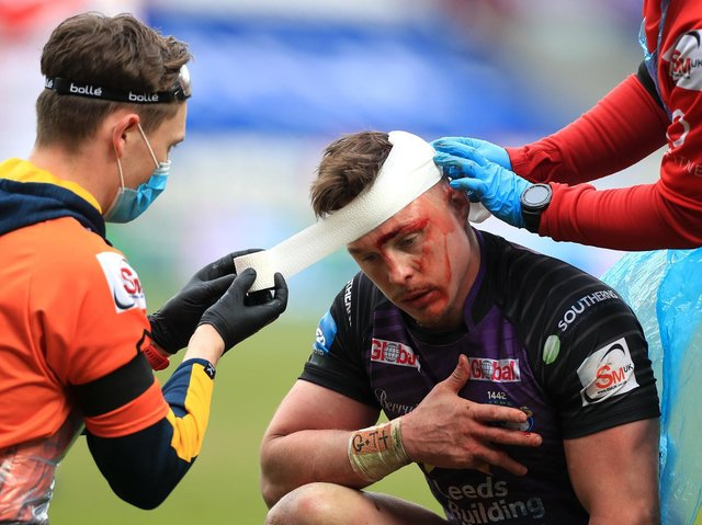 James Donaldson is patched up during the Cup defeat. Picture by Mike Egerton/PA.