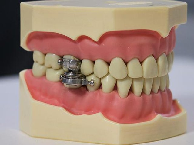 The 'DentalSlim Diet Control' uses magnets to ensure that the user can only open their mouths to about 2 millimetres. Photo: The University of Otago